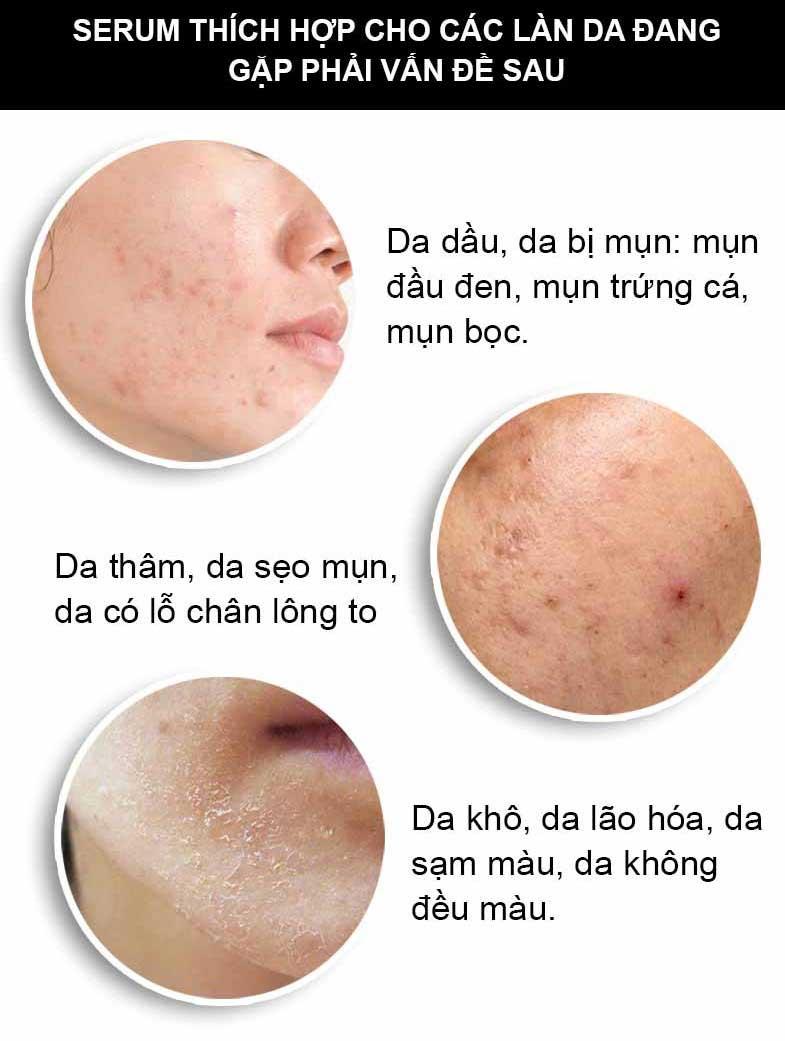 đối tượng thích hợp sử dụng serum trị mụn ric skin ha+ 30ml kohinoor